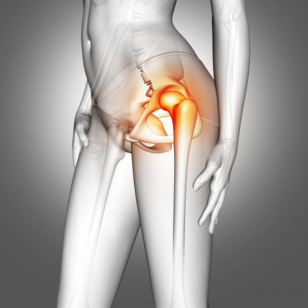 When Is it Time to Consider a Hip Replacement?