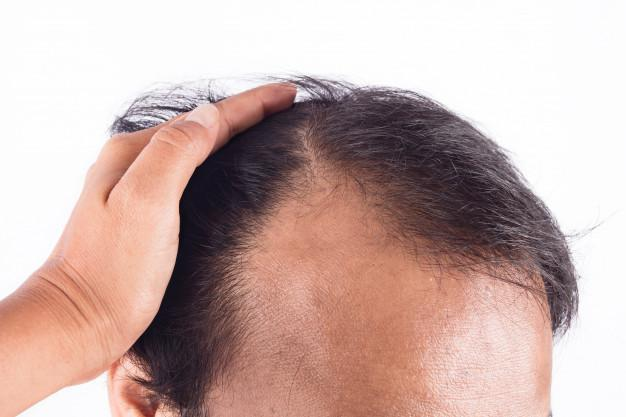 Scalp Micropigmentation—The Innovative New Solution for Hair Loss You Haven't Heard About