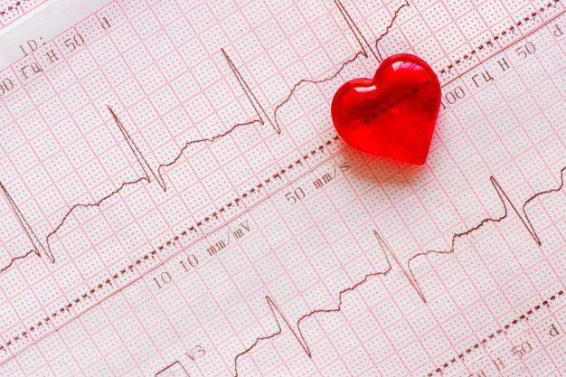 Why would I need an EKG? What to Expect From an EKG