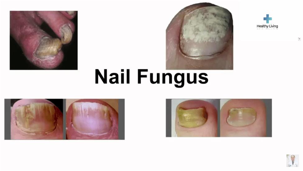 Nail Fungus Images