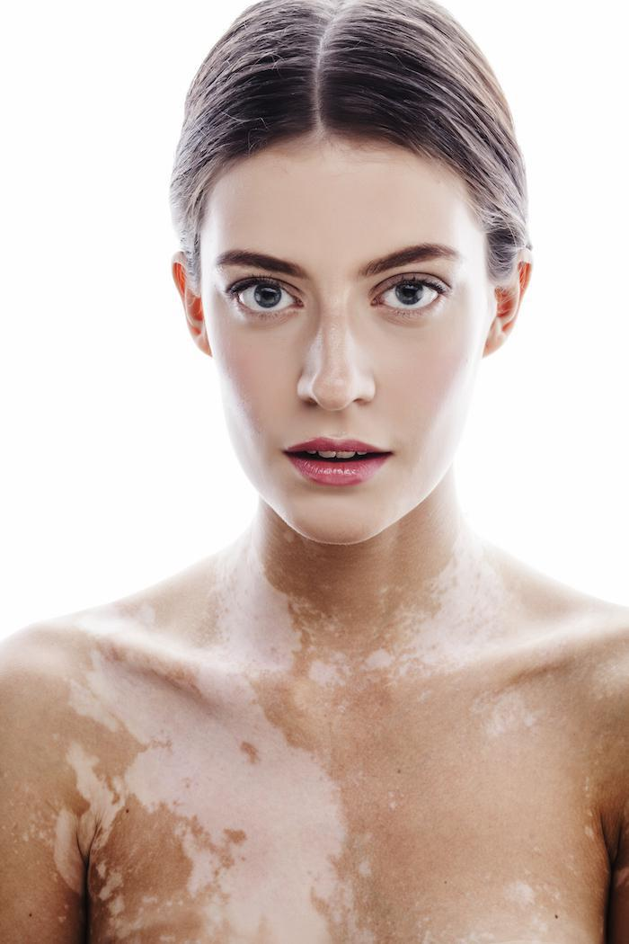 Look for These 5 Common Signs of Vitiligo: Apex Dermatology