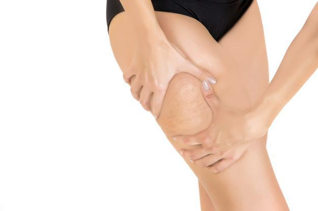 What does a NuEra tight treatment plan consist of, Who is likely to have cellulite, You Can Do Something About That Cellulite