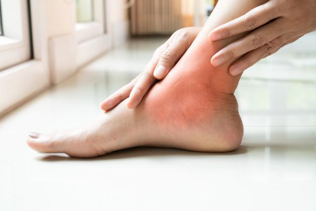 Ankle Discoloration: Causes and Treatment Options