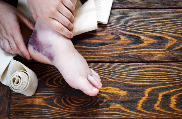 5 Reasons to Visit to Urgent Care If You've Got a Sprain