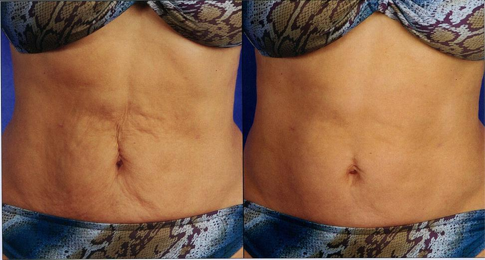 Skin Tyte Before/After Abdomen