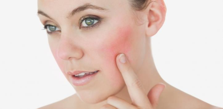 Coping With Rosacea During the Summer