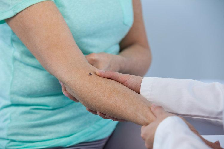 Skin Cancer Pinnacle Care Internal Medicine Internal Medicine