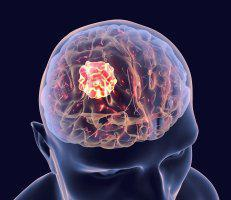 Neurosurgical Specialists Of West County Neurosurgeons