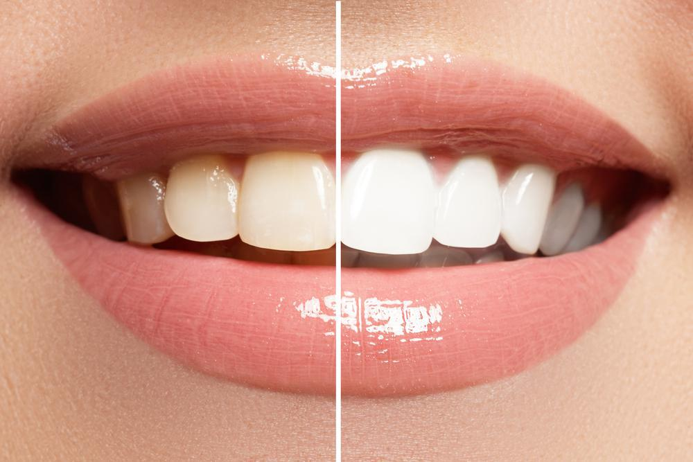 How to Extend the Results of Teeth Whitening: Brian