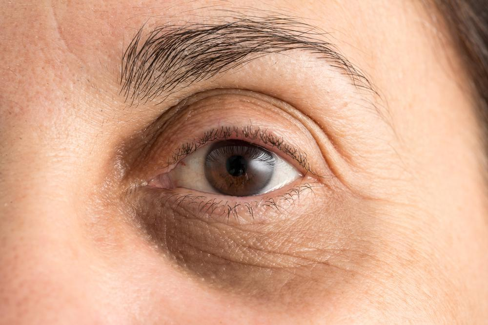 Look Tired but You're Not? Remedy Under-Eye Hollows With a