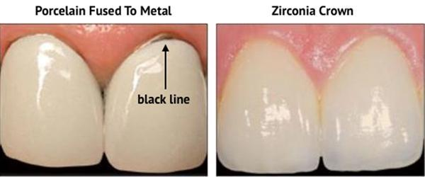 PFM crowns to Zirconia