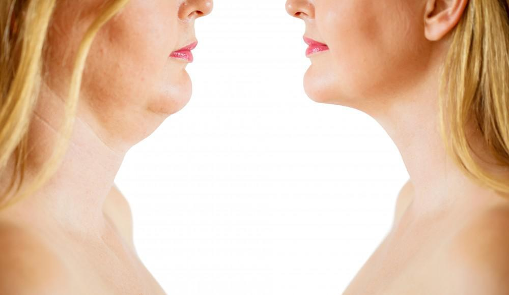At Hamani Medspa in Fort Worth, Texas, we've helped countless women and men ditch their dreaded double chins with Kybella®.