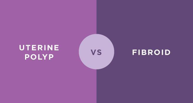 Uterine Polyp Vs  Fibroid: Knowing The Difference: Alate