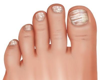 Toe nail fungus - we all have it.: Peach Skin & Laser: Laser Center &  Medispas