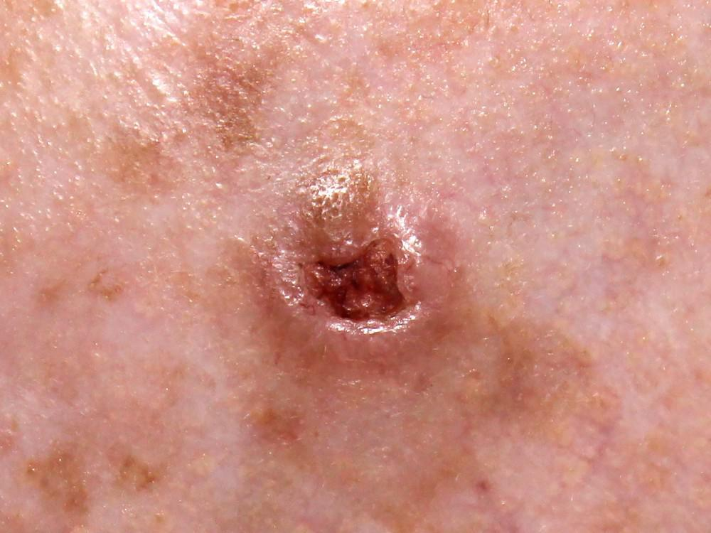 What Are The Most Common Types Of Skin Cancer Elevation Dermatology Medical Cosmetic Dermatology