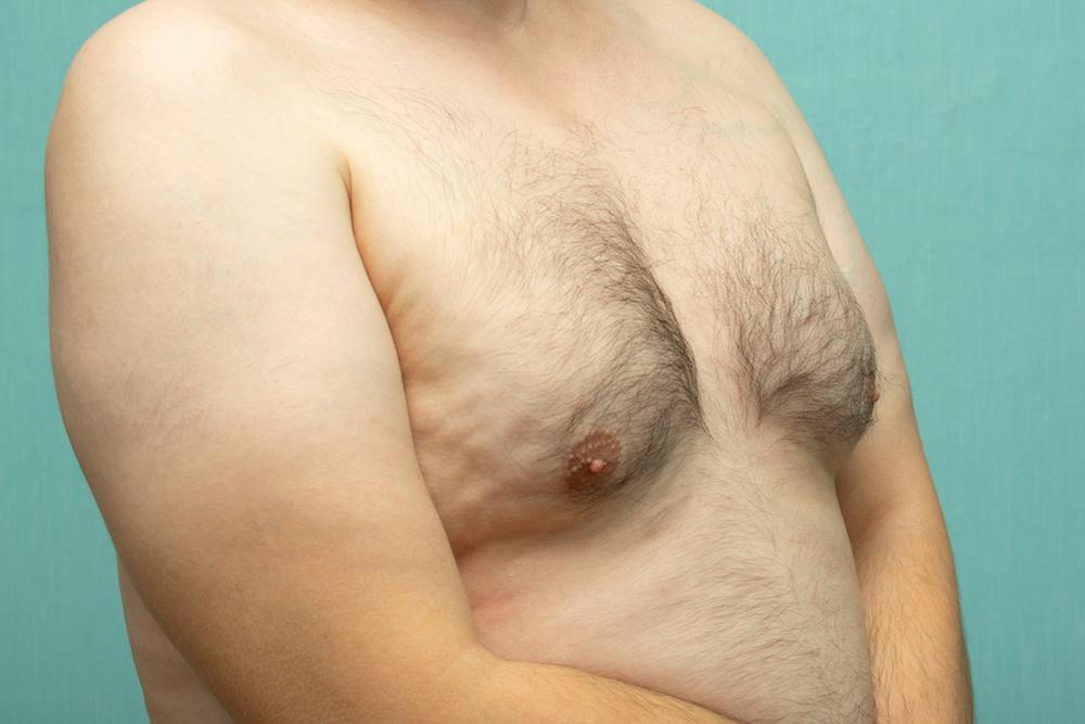 Beauty by Brueck, Dr. Robert Brueck, a board-certified plastic surgeon located in Fort Meyers, Florida, offers gynecomastia s