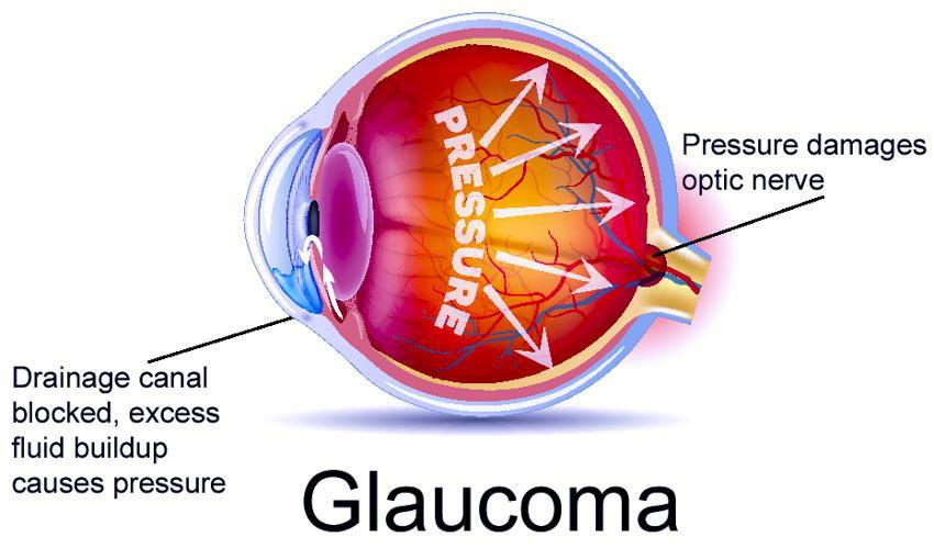 Glaucoma Eye Under Pressure