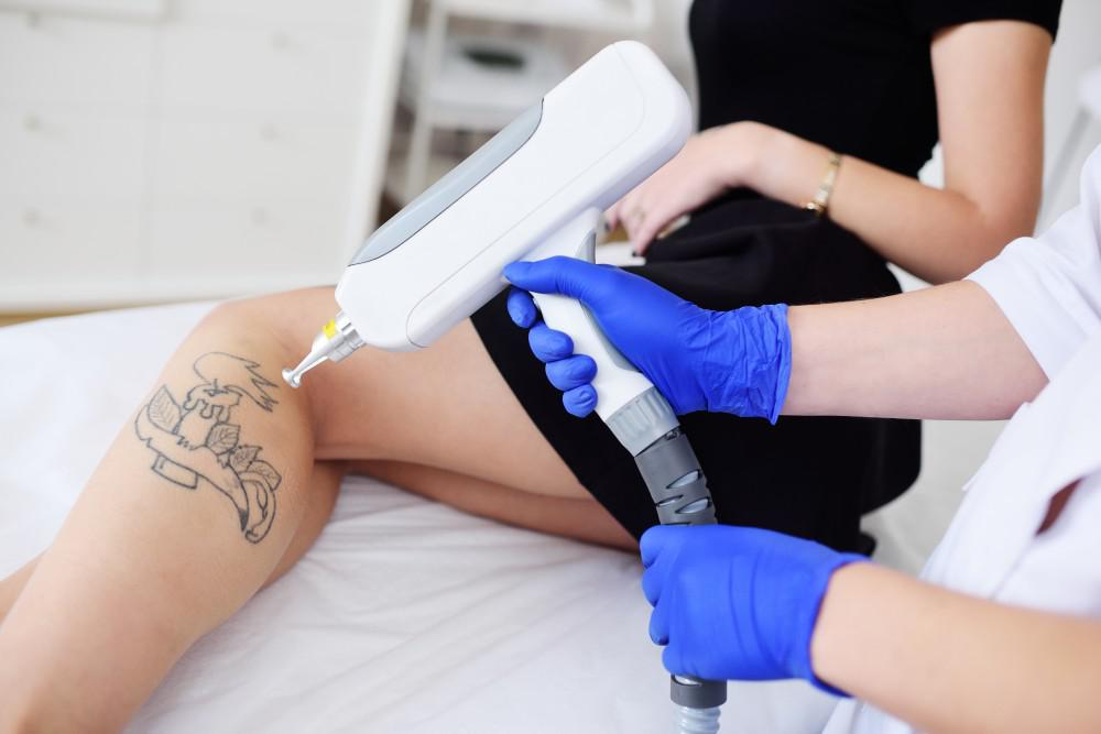 Laser Tattoo Removal - Fast & Safe