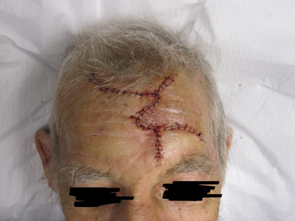 Closure on Scalp SCC