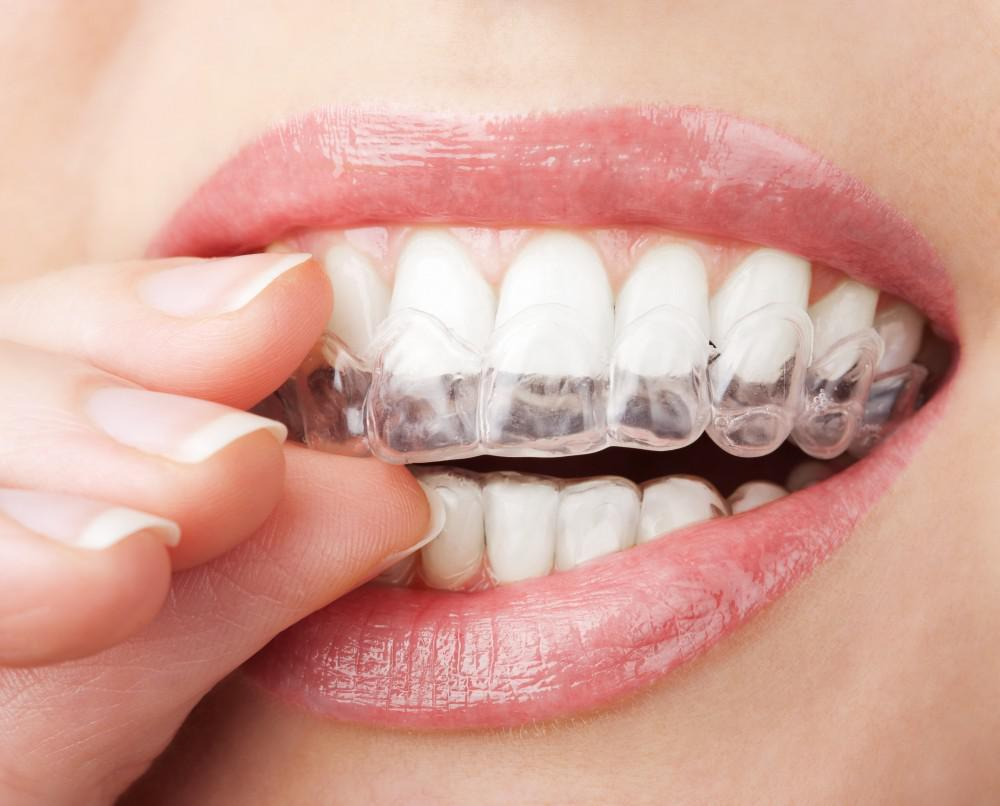 Teeth wearing invisalign