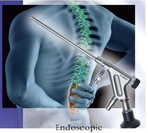 Minimally invasive endoscopic procedures