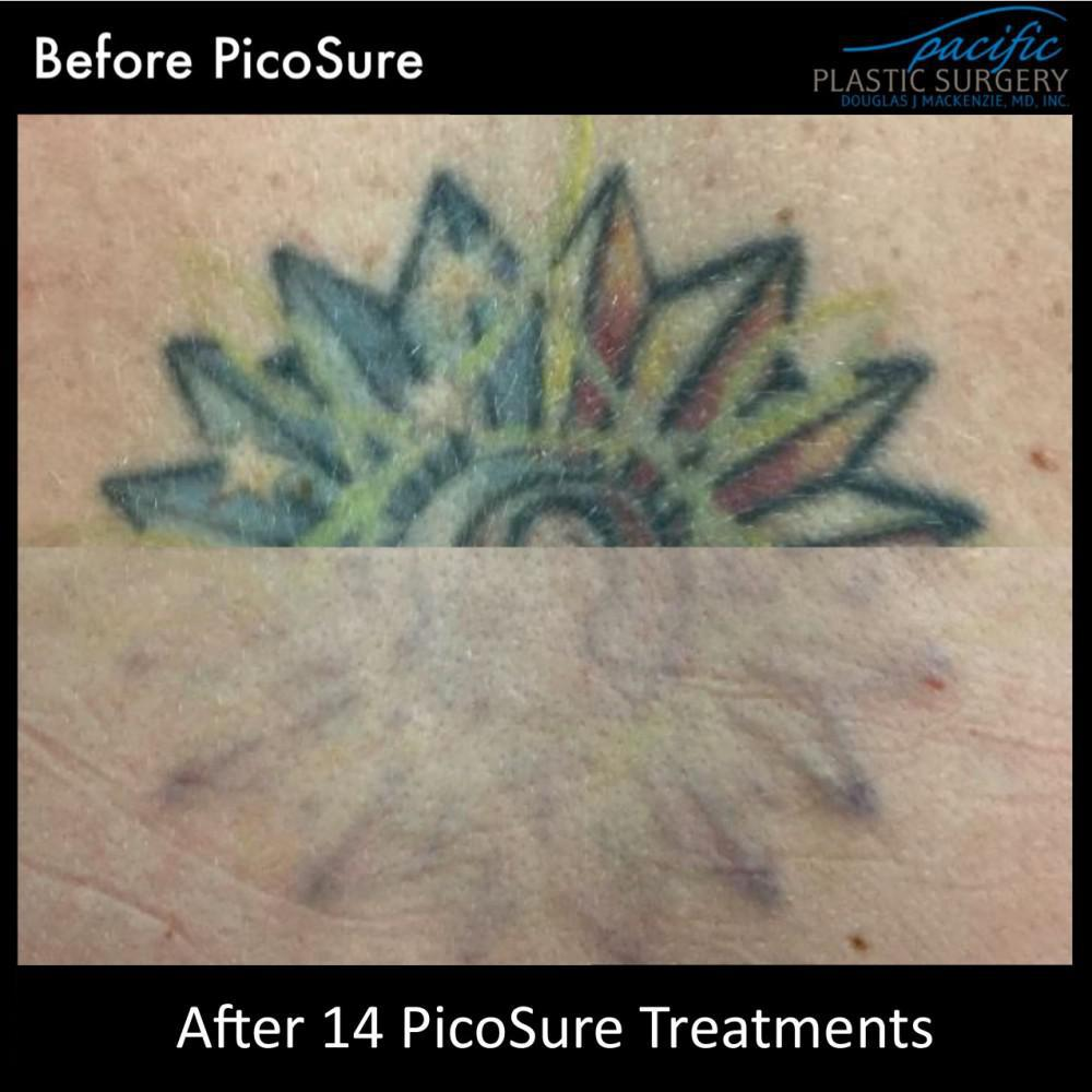 Multicolored tattoo removal with PicoSure laser