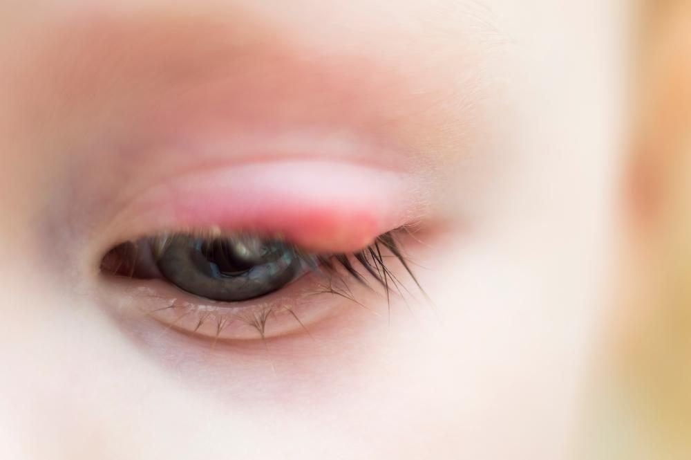 At ABC Children's Eye in Phoenix and Mesa, AZ specialists can perform a procedure to help the stye drain.