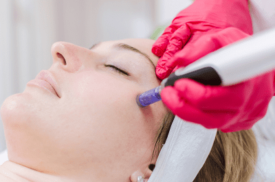 Microneedling and PRP or