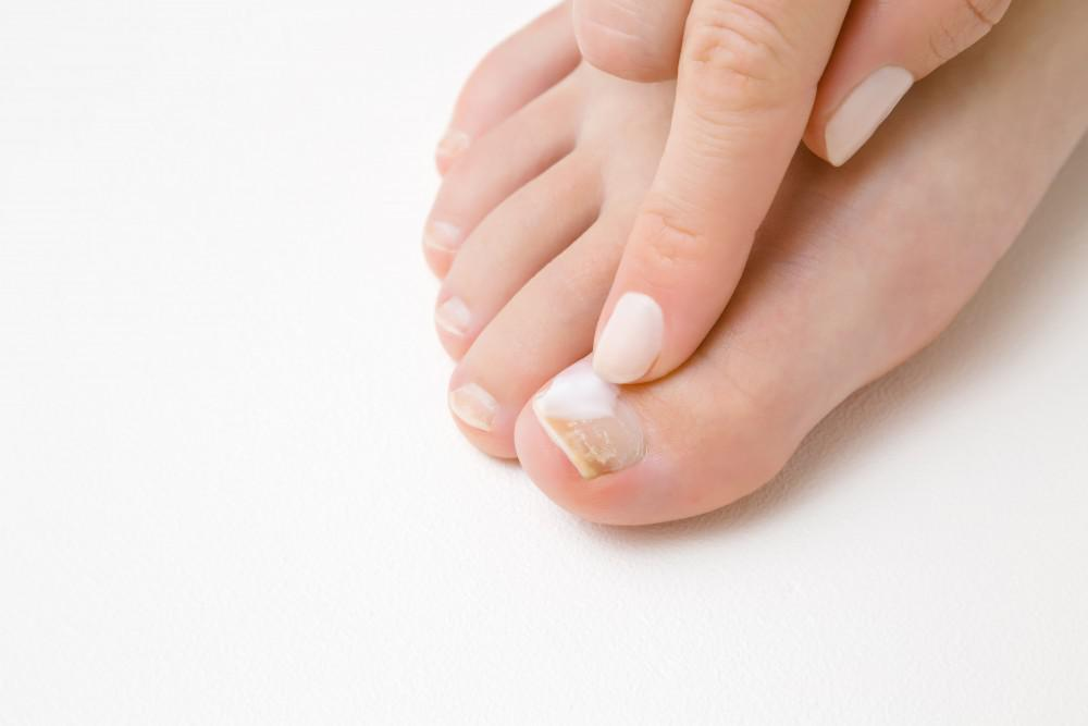 At Glendale Foot and Ankle Podiatry Center, our experienced podiatrist, Hermoz Ayvazian, DPM, FACFAS, QME, may have the solut