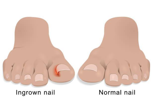 How To Treat An Ingrown Toenail North Star Foot Ankle