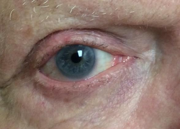 Mohs Surgery Case Basal Cell Carcinoma On Eyelid Discussion On Eye Tumors Pine Belt Dermatology Skin Cancer Center General Cosmetic Dermatologists