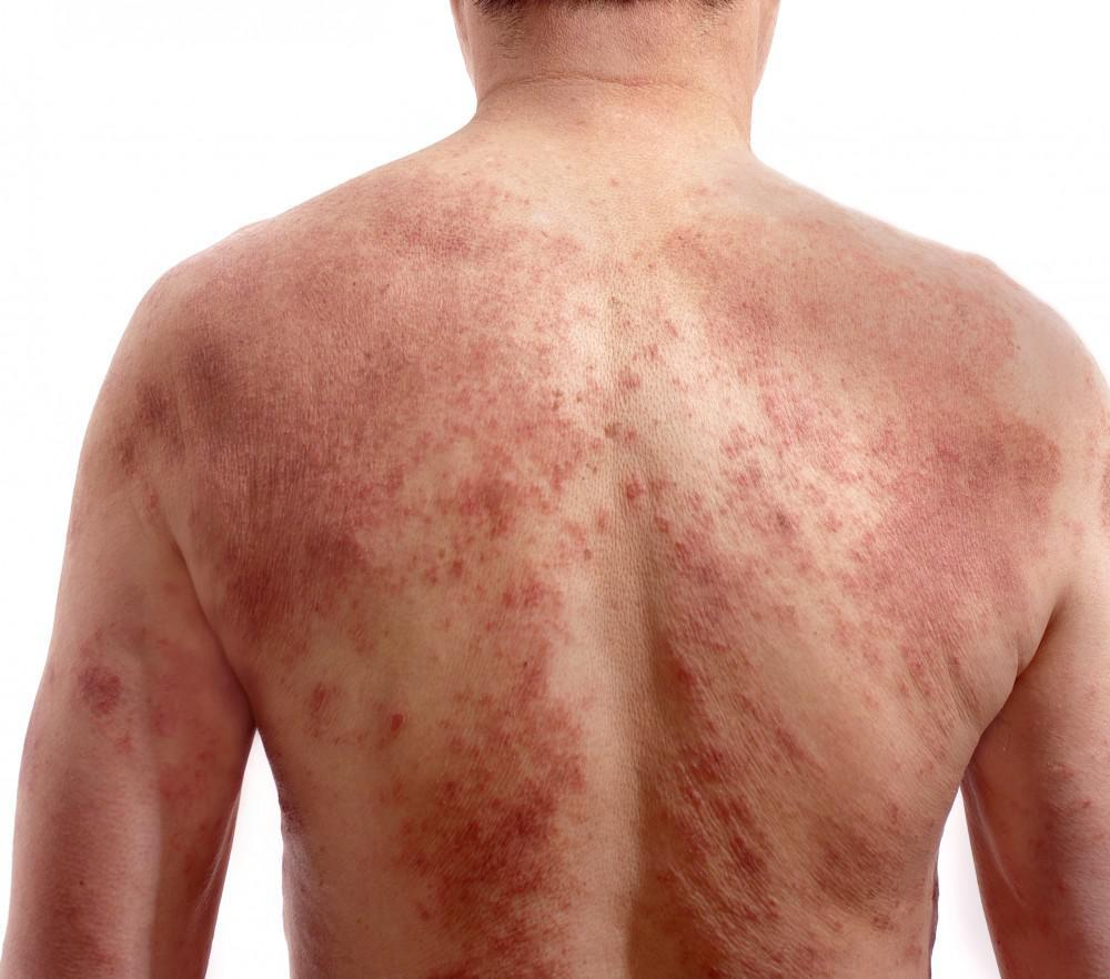 What Should I Do About Rashes And Hives Allergy Asthma