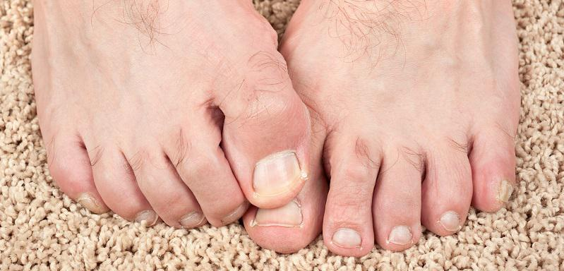 Bunion Exercises