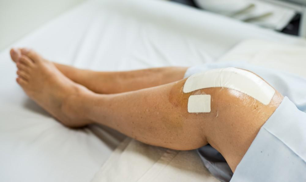 5 Tips to Speed Your Recovery After Knee Replacement Surgery ...