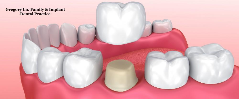 Dental Crowns.