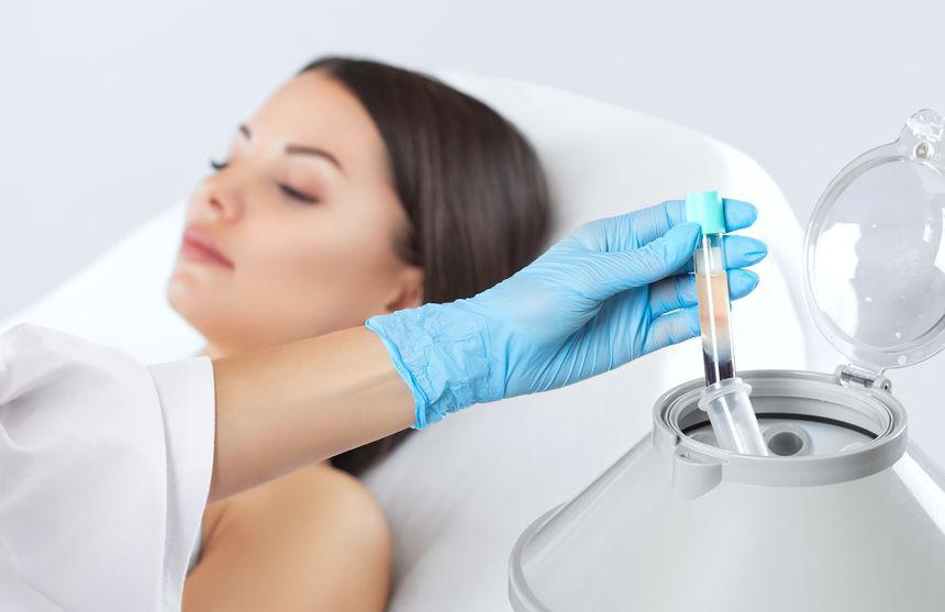 PRP Therapy