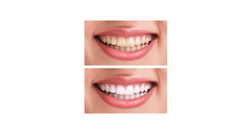 A 'before and after' picture of whitened teeth.