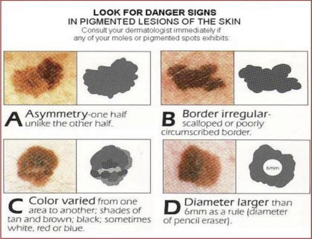 Skin Cancer And Your Feet Universal City Tx Pleasanton Tx Next Step Foot Ankle Clinic