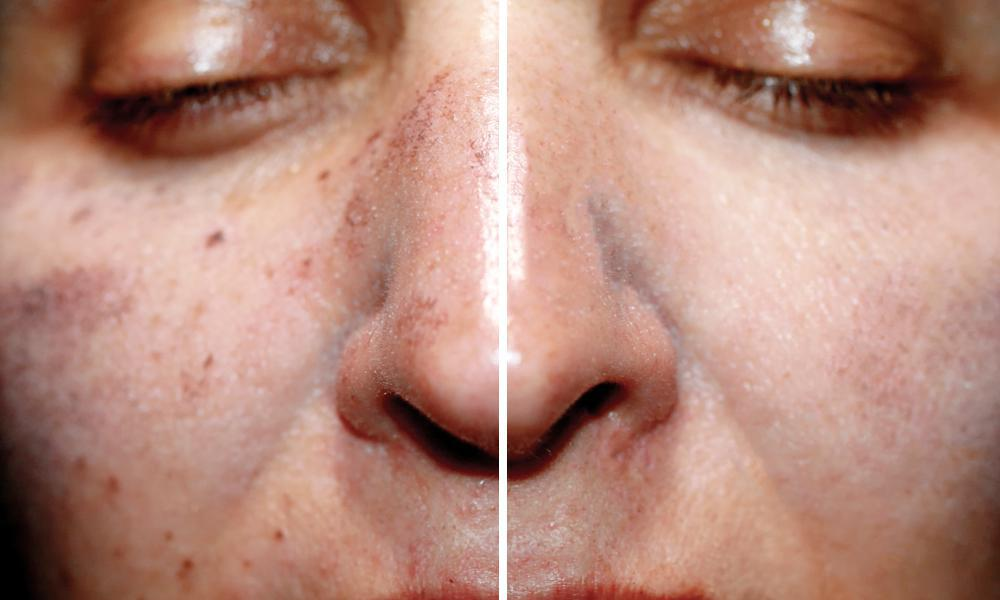 See Dark Spots Go With Picosure Laser Skin Rejuvenation Orange Coast Aesthetics Cosmetic Specialists