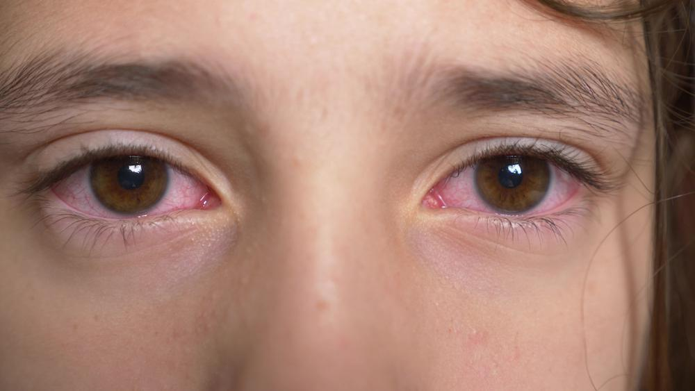 For more tips on how you can treat your child's pink eye, and keep your child's eyes healthy and free of infection, call your