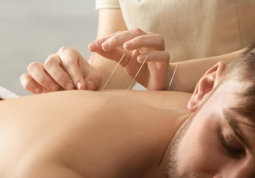 If you have insomnia, acupuncture may be able to help.