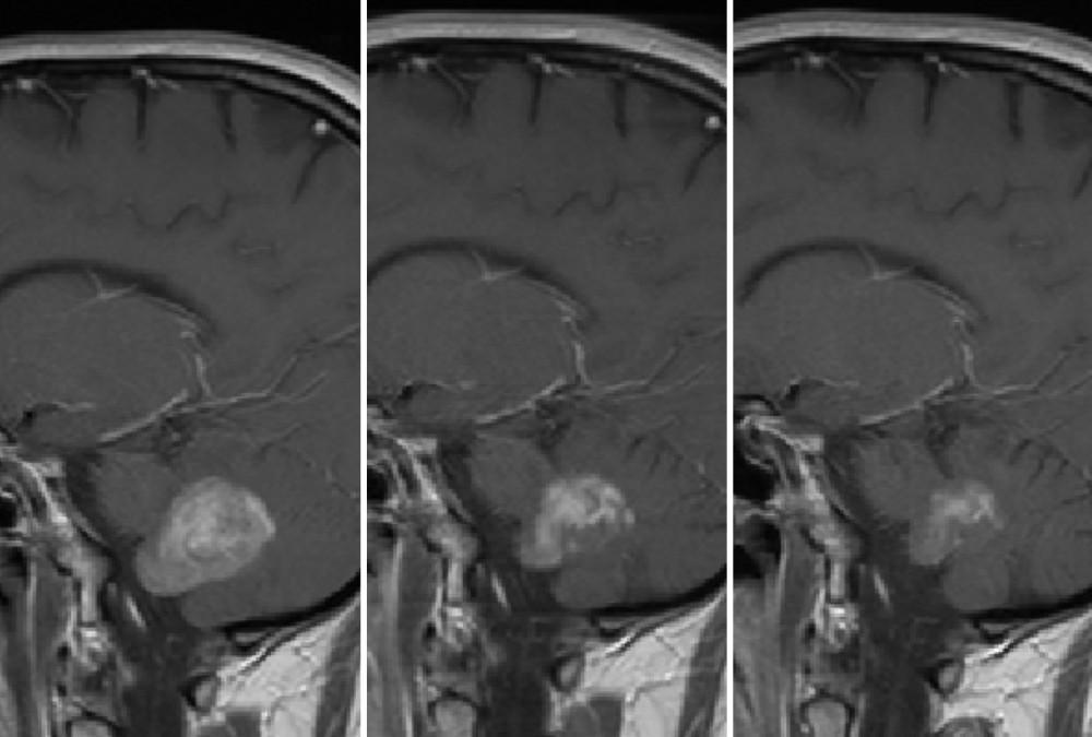 Brain MRI 1 year progression