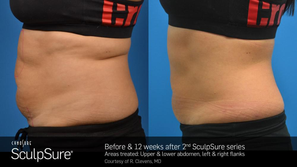 SculpSure: Before and After with 2 treatments.