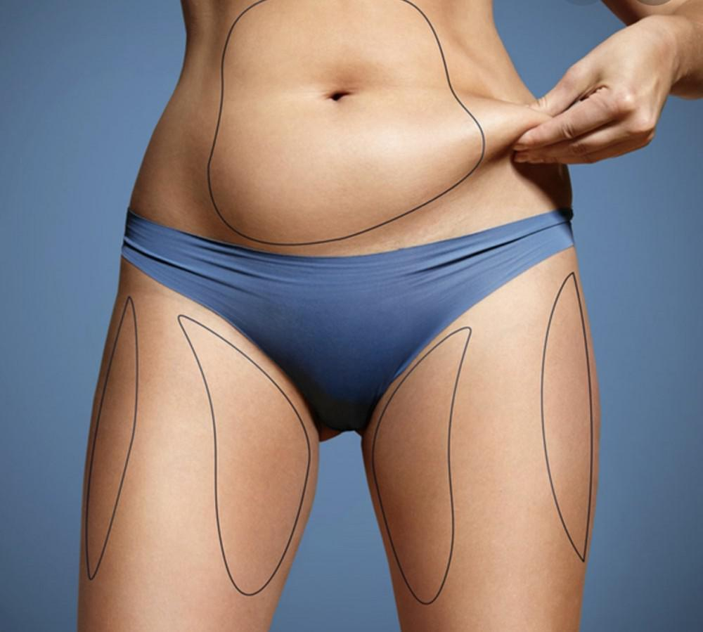 Remove Fat With Coolsculpting