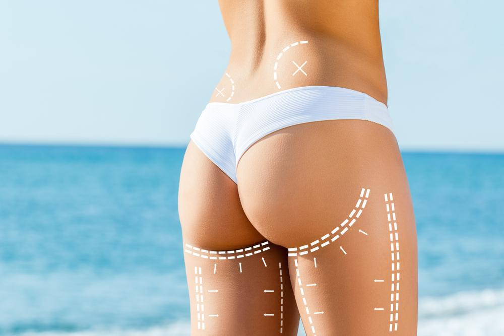 Learn more about a laser treatment that can melt your fat away without any downtime or pain.