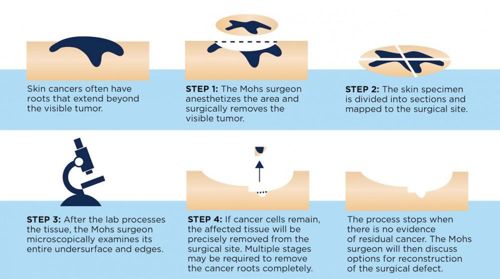 The Mohs Micrographic Surgery Process Pine Belt Dermatology Skin Cancer Center General Cosmetic Dermatologists