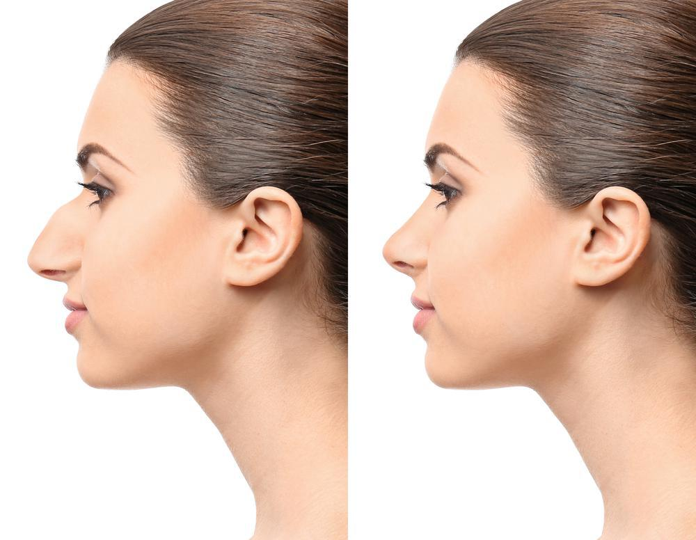 Are you unhappy with your nose job? Find out how to find the best surgeon for your rhinoplasty revision.