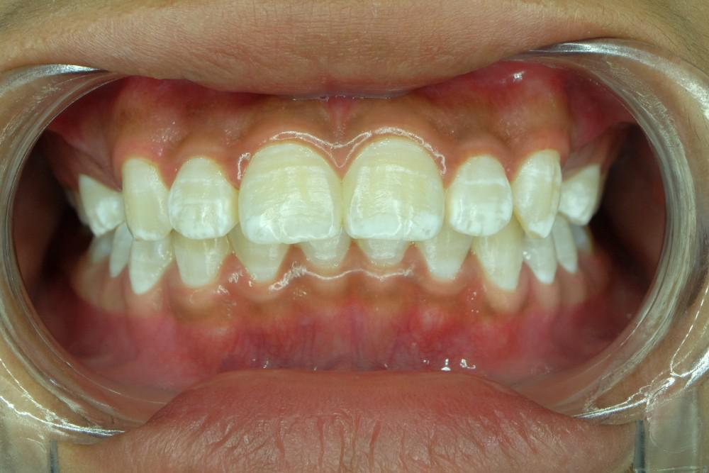 What Causes White Spots On Teeth And How To Get Rid Of Them Core