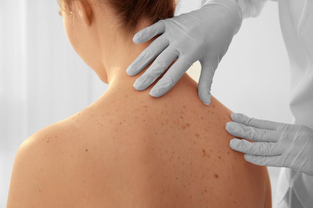 So You Ve Got Skin Cancer What Now Allen Sapadin Md Dermatologists
