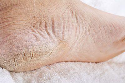Diabetic Skin Care For Feet Universal City Tx Pleasanton Tx